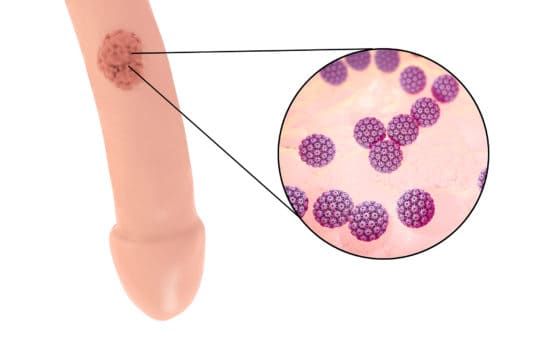 Genital warts (condyloma): symptoms and effective treatments