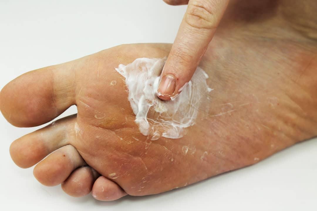 champignon sur les pieds