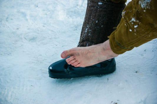 Engelures et gelures : informations, causes et traitements ...