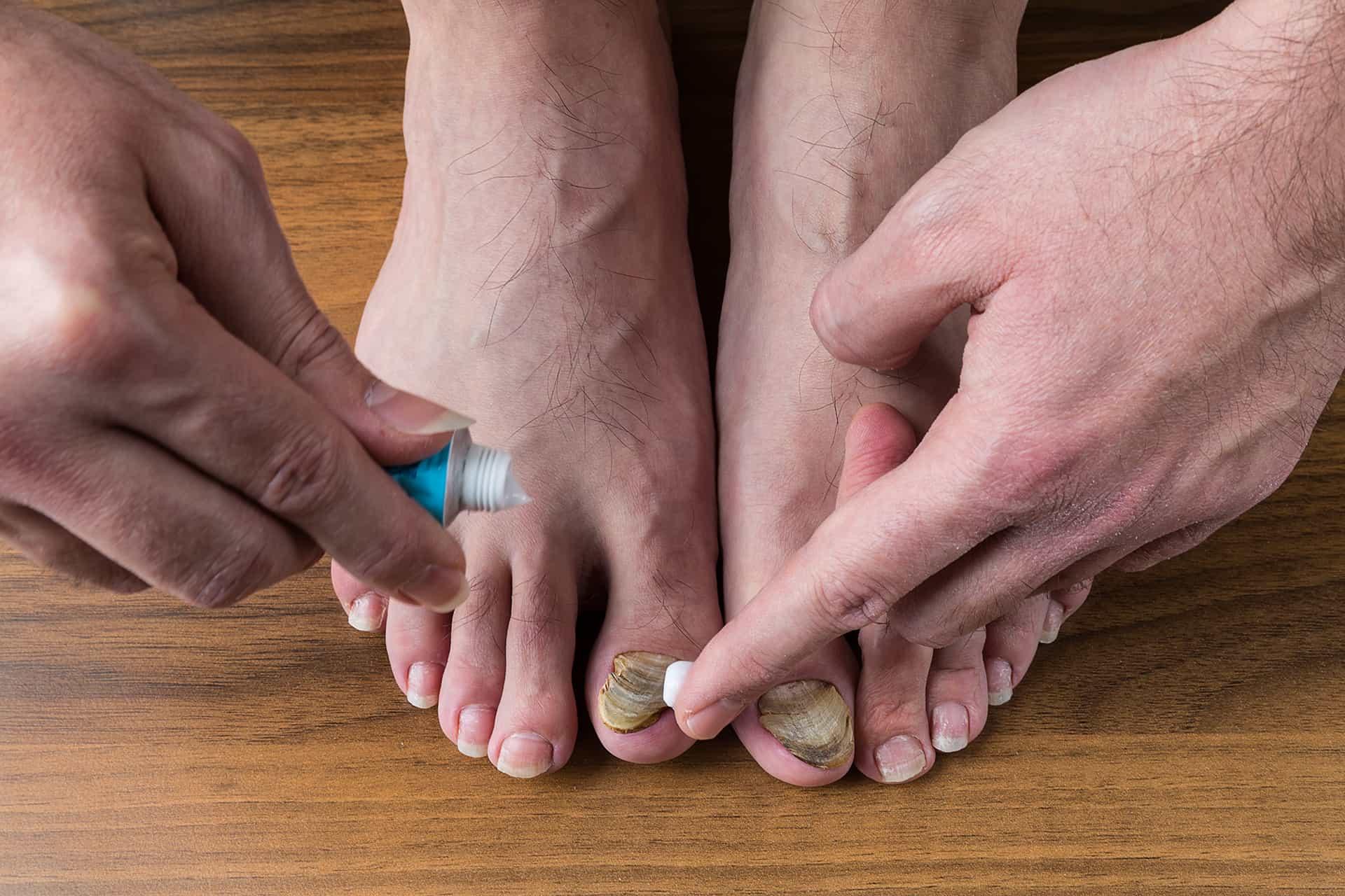 mycose des pieds qui consulter