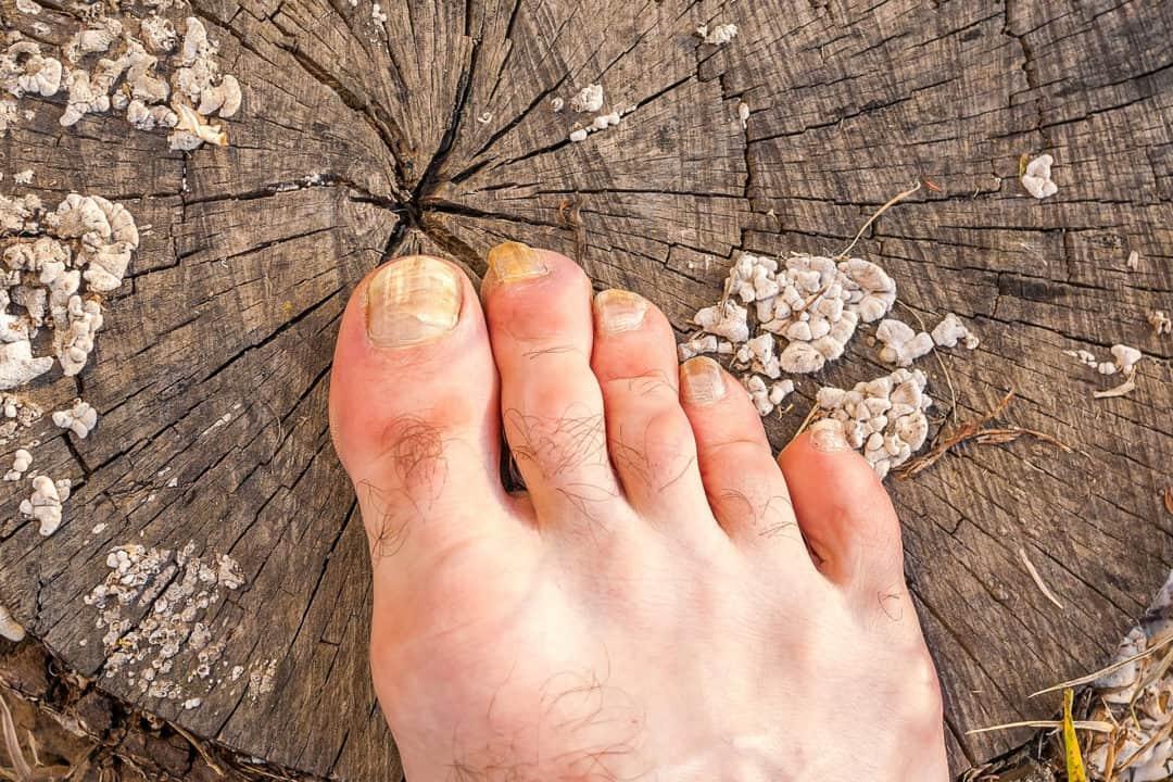 Mycose des pieds, les traitements efficaces pour en venir ...