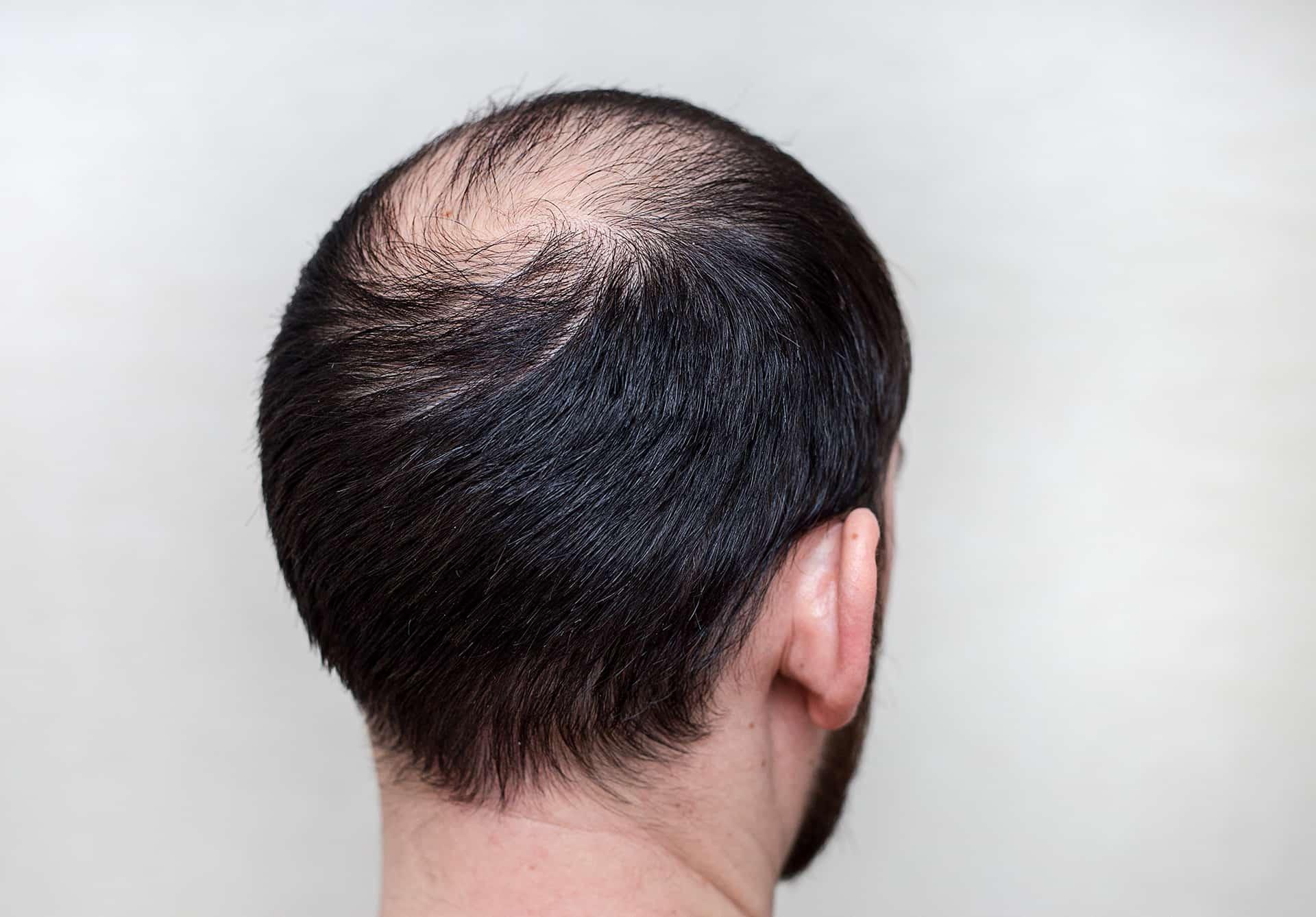 perdre les cheveux