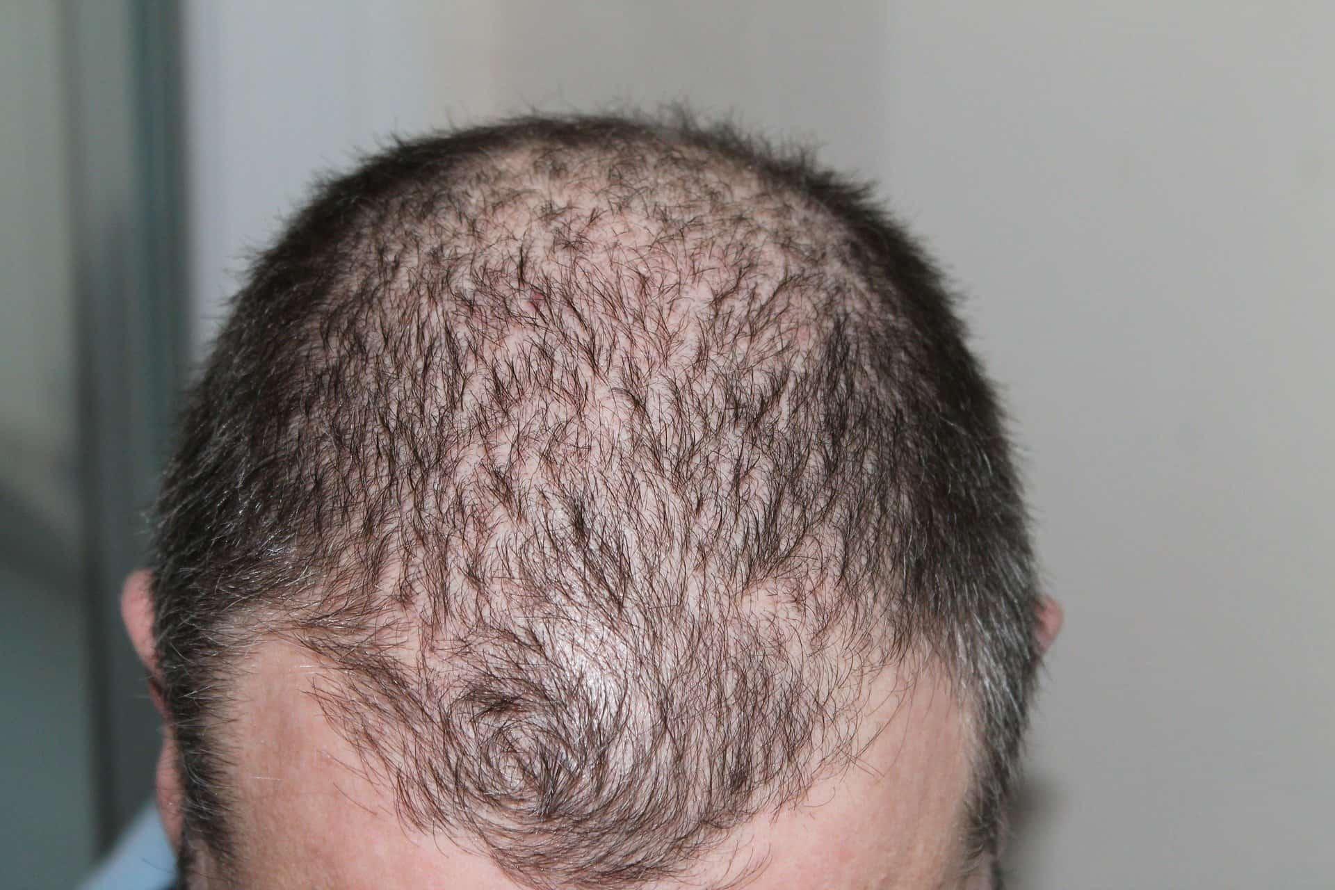 lutter contre perte de cheveux