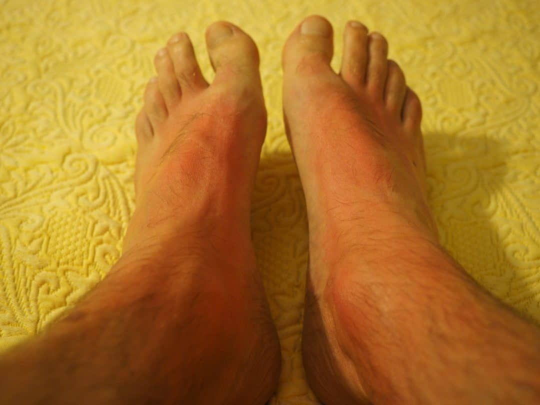 allergie peau des pieds